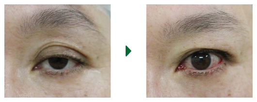眼瞼下垂(3) 術前術直後