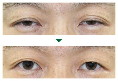 眼瞼下垂(4) 術前術後