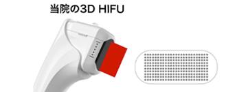 HIFU(ハイフ)の照射