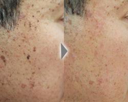 [50代男性、15個くらいの顔のしみでお悩みの方]シミ治療をするとどうなるのか情報をご提供。