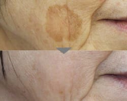 [50代女性 顔のしみでお悩みの方へ]シミ取り治療をするとどうなるか情報をご提供。