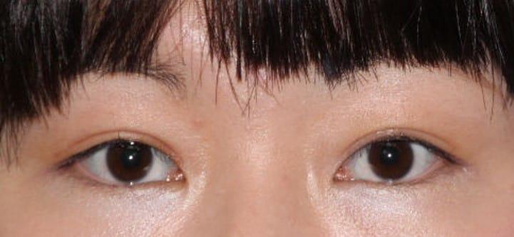 目がパッチリ二重切開手術後