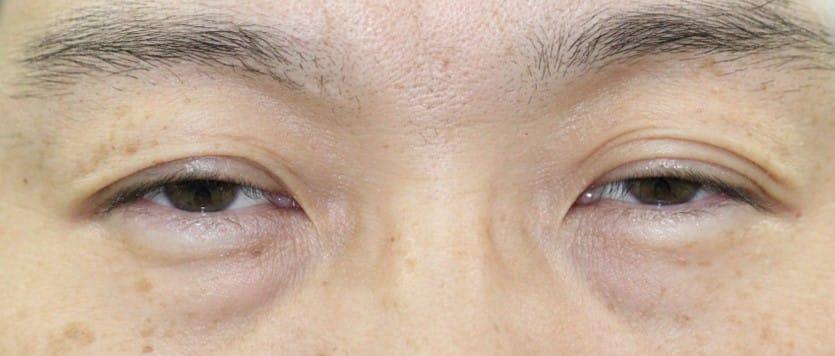 30代男性眼瞼下垂手術前