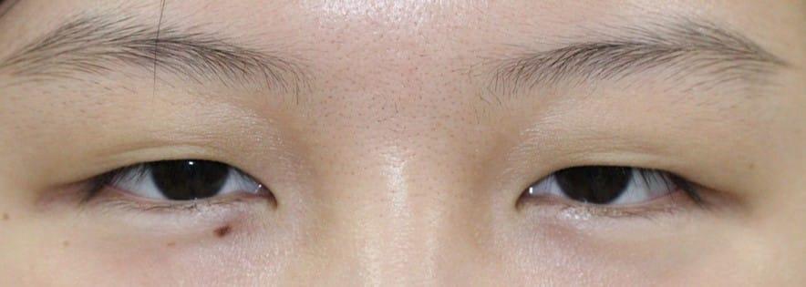 20代女性眼瞼下垂手術前