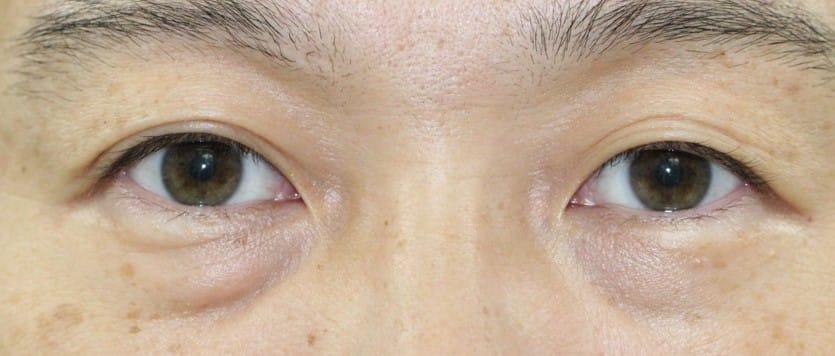 30代男性眼瞼下垂手術後