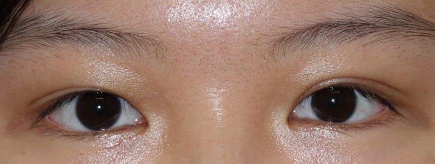 20代女性眼瞼下垂手術後