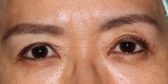 眼瞼下垂過矯正修正手術前