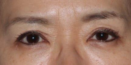 眼瞼下垂過矯正修正手術後