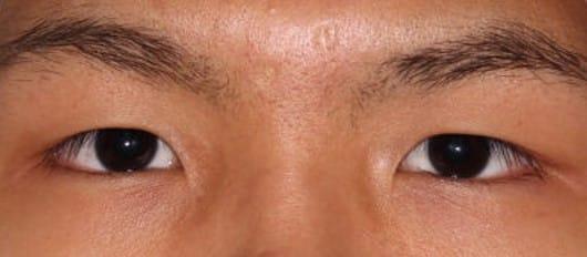 眼瞼下垂手術前