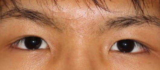 眼瞼下垂手術後