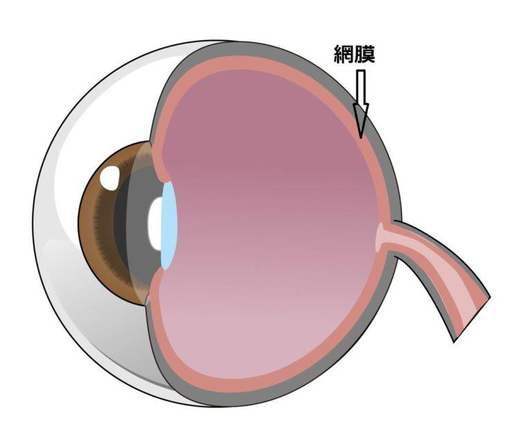 網膜剥離には2種類あり