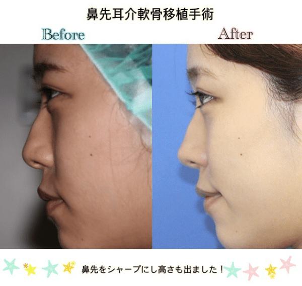 鼻先耳介軟骨移植手術前後_顔全体
