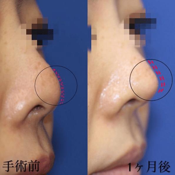 鼻先耳介軟骨移植手術前後_鼻