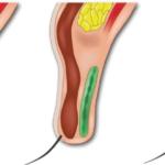 二重切開修正手術の世界の美容整形テクニック「挙筋腱膜上脂肪前転術」