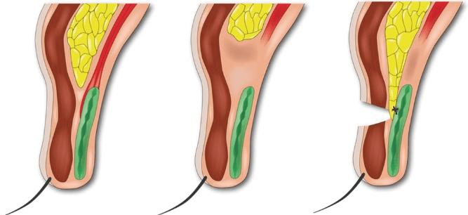 挙筋腱膜上脂肪前転術