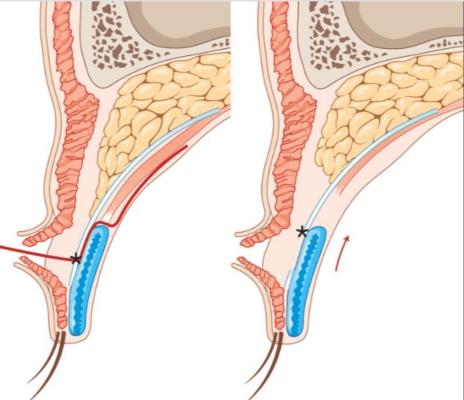 瞼板前組織のスペーサーフラップ