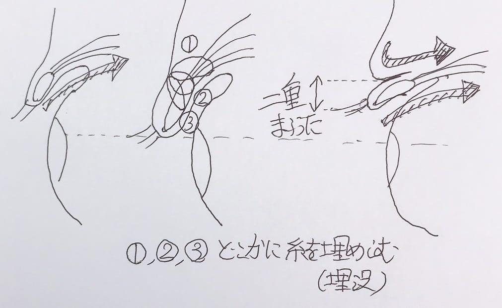 二重埋没法説明図1