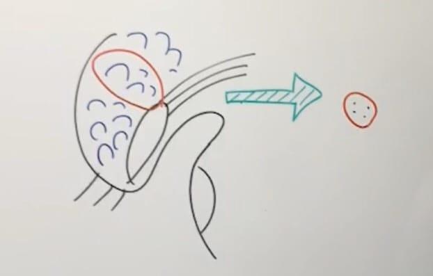糸の埋め込み説明図