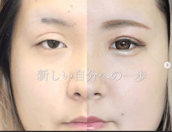 二重切開修正 傷跡とハム目は治せます。