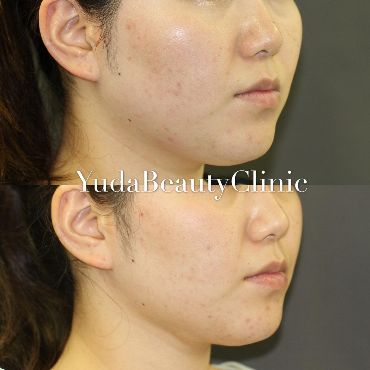 顎下脂肪吸引症例写真