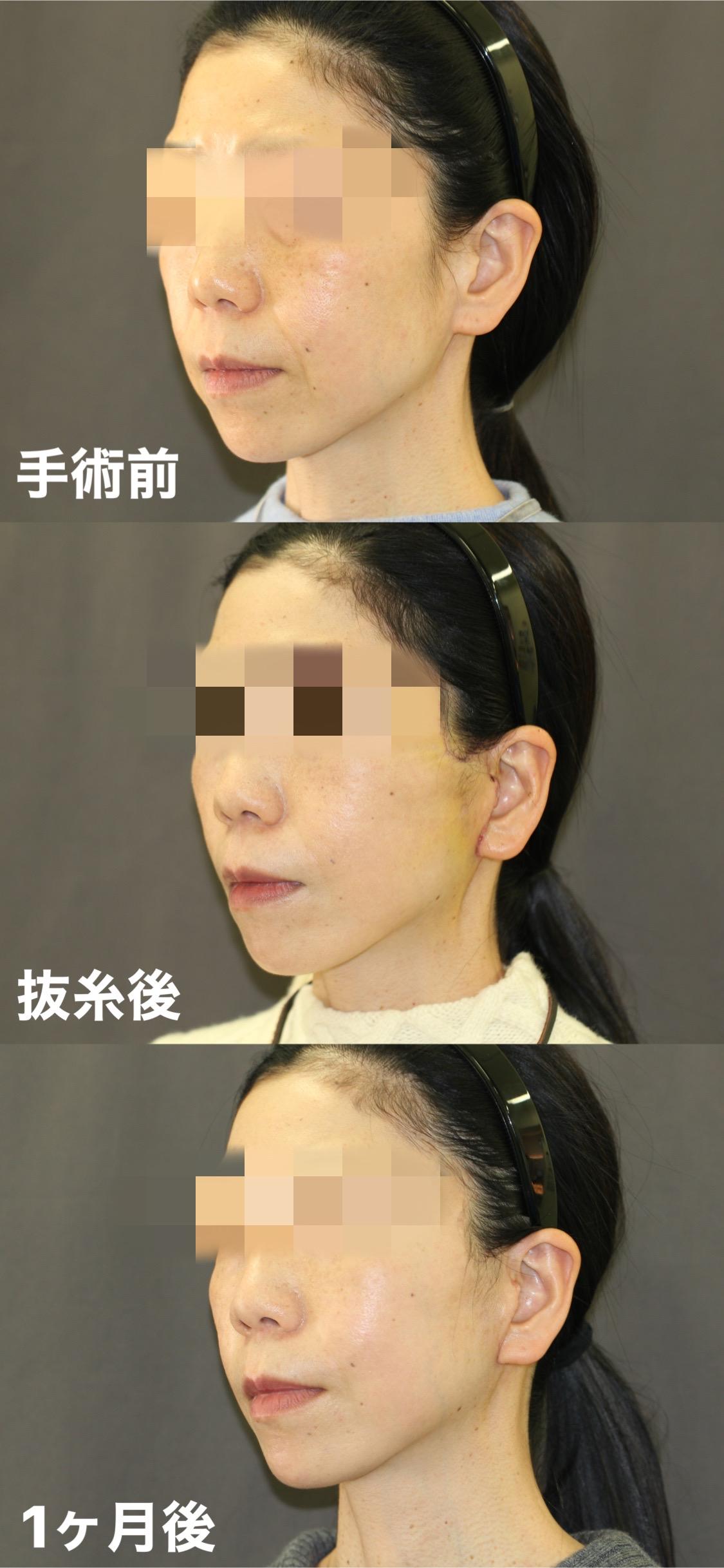 手術前から1M(斜め)